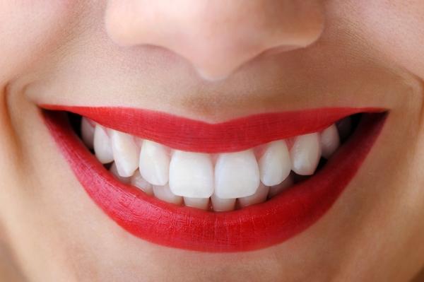 5 Cara Membersihkan Karang Gigi Dengan Cepat